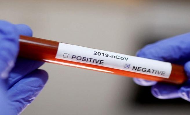 62 kişinin testi negatif çıktı